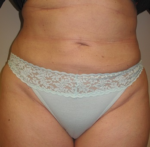 Liposuction - Case 144 - After