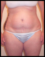 Liposuction - Case 85 - Before
