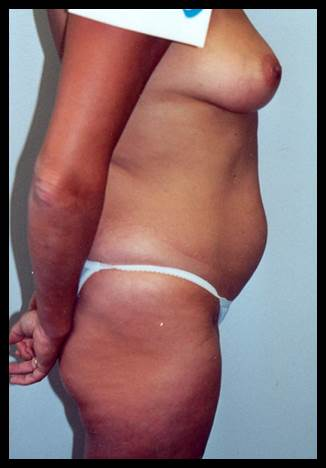 Liposuction - Case 87 - Before