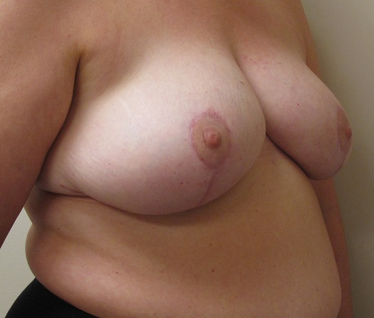 Breast Reduction Patient Photo - Case 141 - after view-1