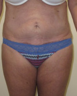 Tummy Tuck - Case 86 - After
