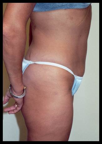 Tummy Tuck - Case 87 - After