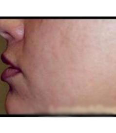 Lip Augmentation Patient Photo - Case 115 - before view-1