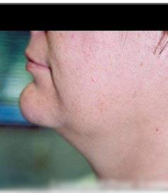 Facial Liposuction Patient Photo - Case 118 - before view-0
