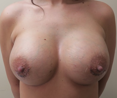 Breast Augmentation Patient Photo - Case 137 - after view