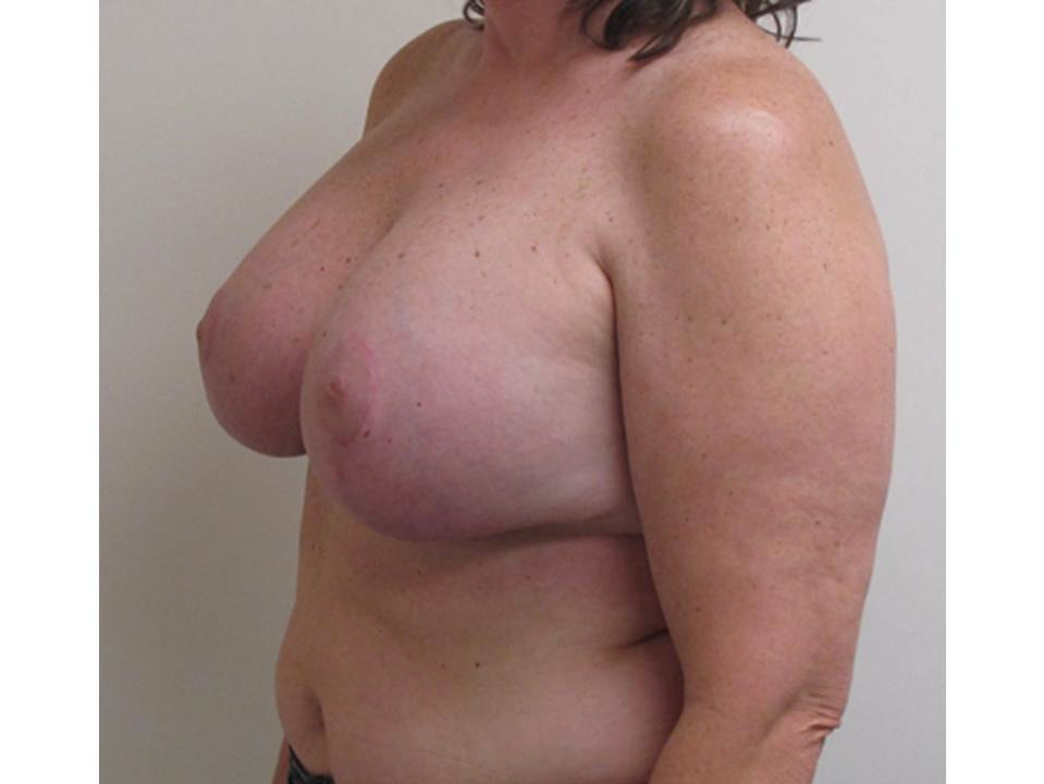 Breast Reduction Patient Photo - Case 101 - after view-2
